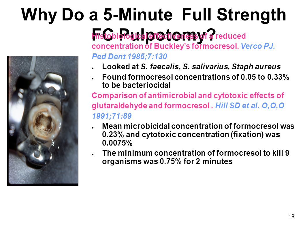 18 Why Do a 5-Minute Full Strength FC Pulpotomy.