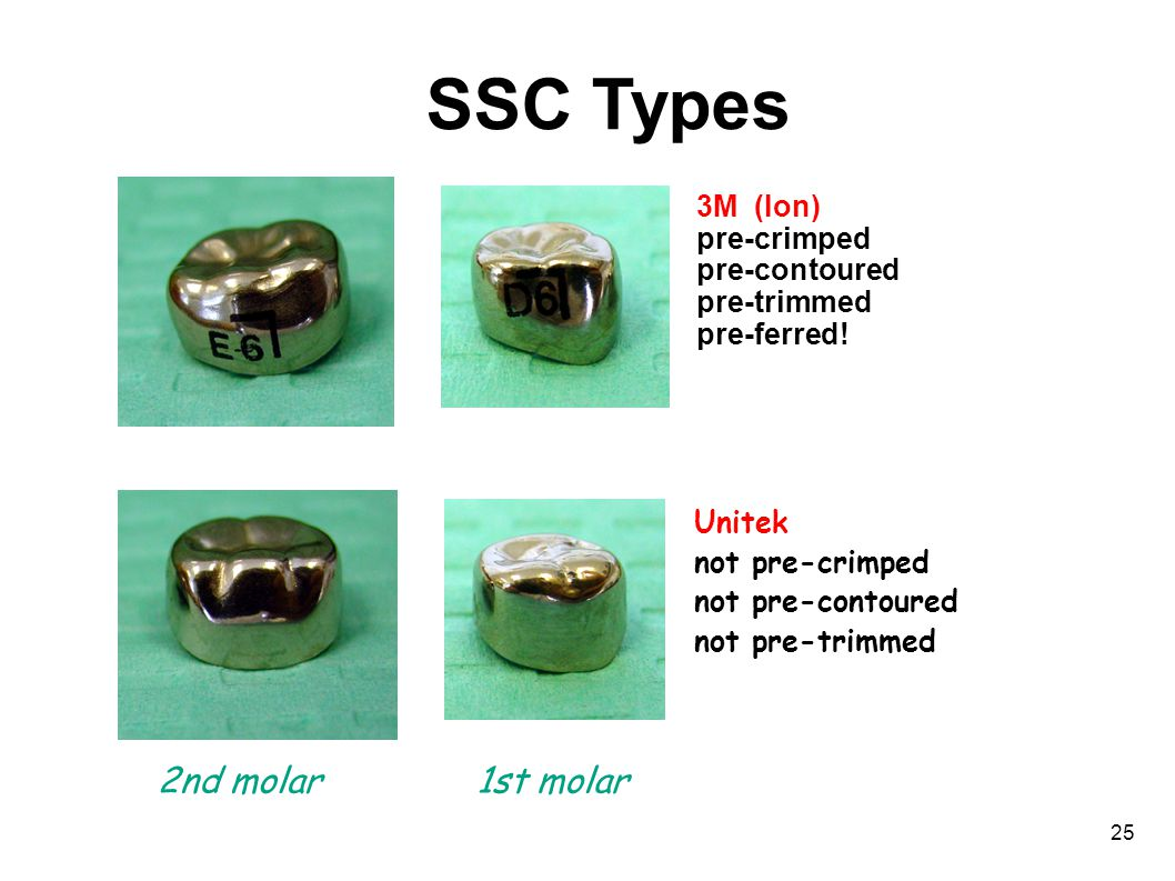 25 SSC Types 3M (Ion) pre-crimped pre-contoured pre-trimmed pre-ferred.