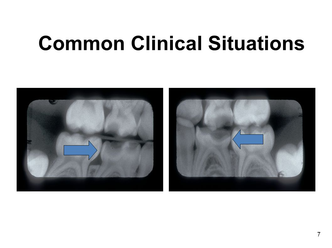 7 Common Clinical Situations
