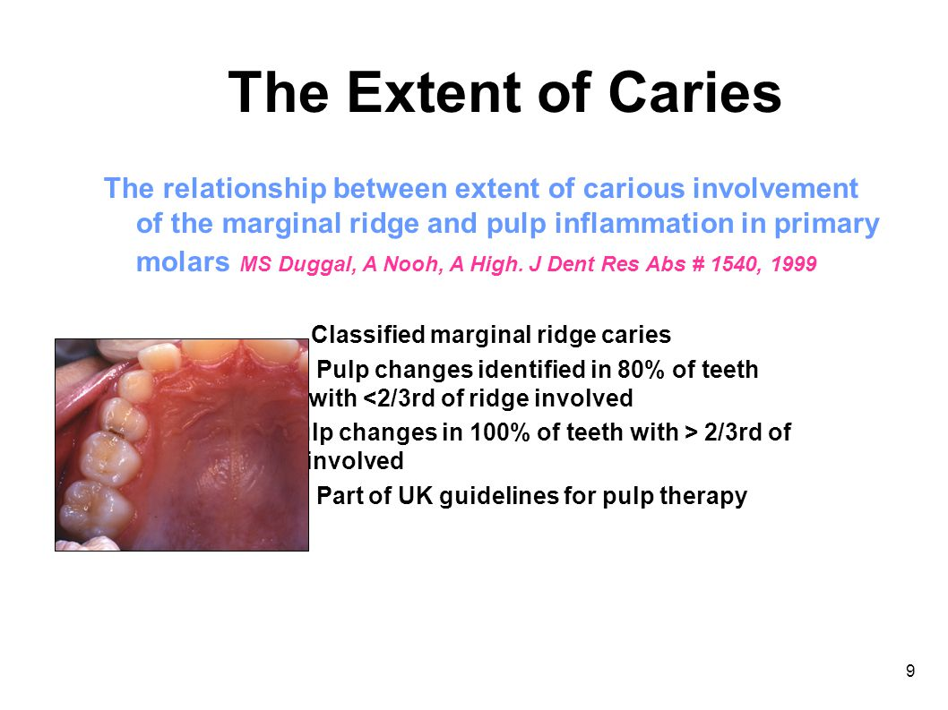 9 The Extent of Caries The relationship between extent of carious involvement of the marginal ridge and pulp inflammation in primary molars MS Duggal, A Nooh, A High.
