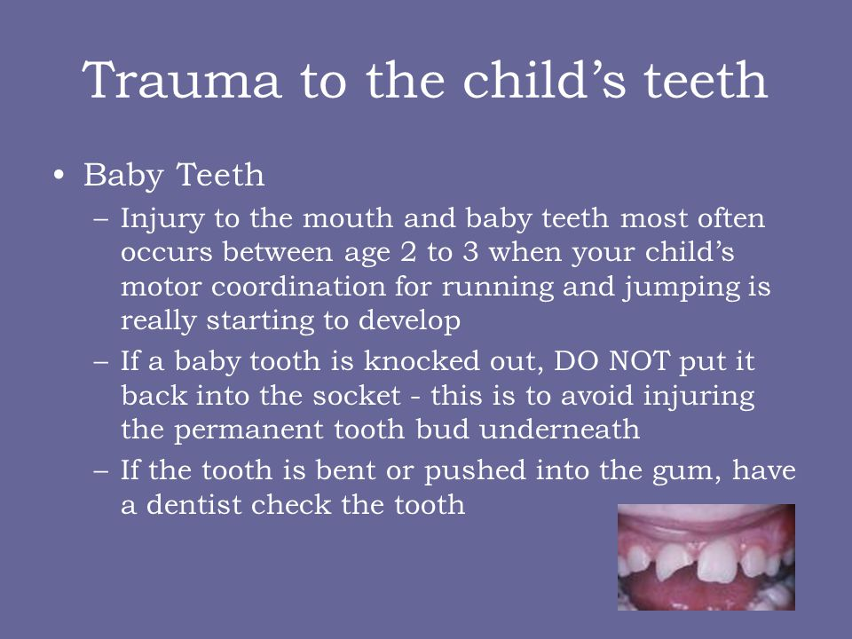 Trauma to the childs teeth Baby Teeth –Injury to the mouth and baby teeth most often occurs between age 2 to 3 when your childs motor coordination for