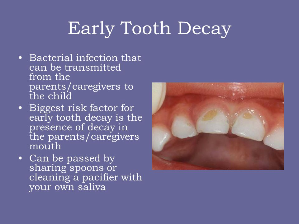 Why baby teeth are so important Infection in baby teeth can pass and affect permanent teeth Helps with speech They hold space for the permanent teeth Eating Esthetics/Self-Confidence