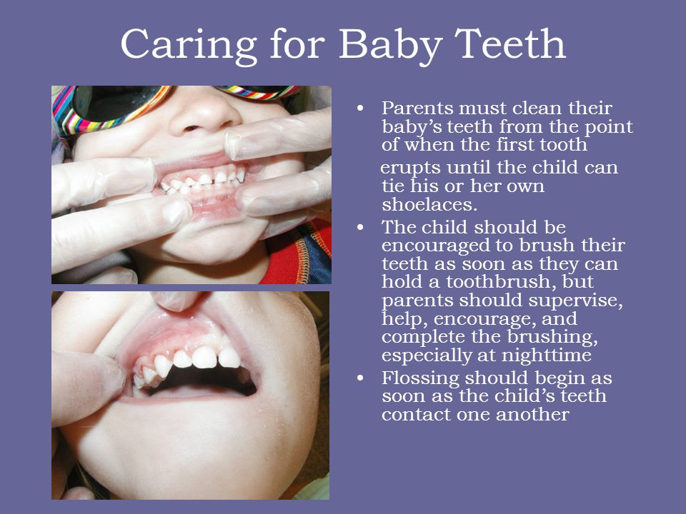Who can see your baby General Dentist – call the office to see if they accept children under the age of 3 Pediatric Dentist – dentist who specializes in children