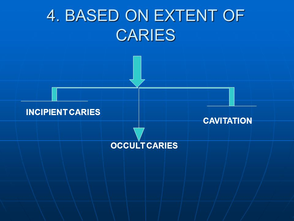 4. BASED ON EXTENT OF CARIES INCIPIENT CARIES OCCULT CARIES CAVITATION
