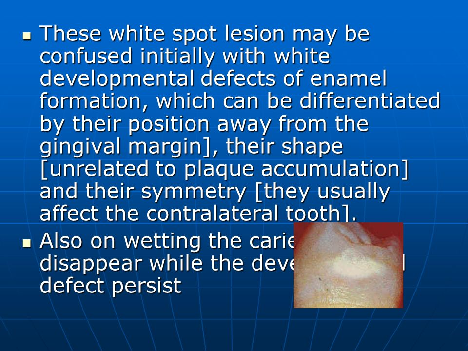 These white spot lesion may be confused initially with white developmental defects of enamel formation, which can be differentiated by their position