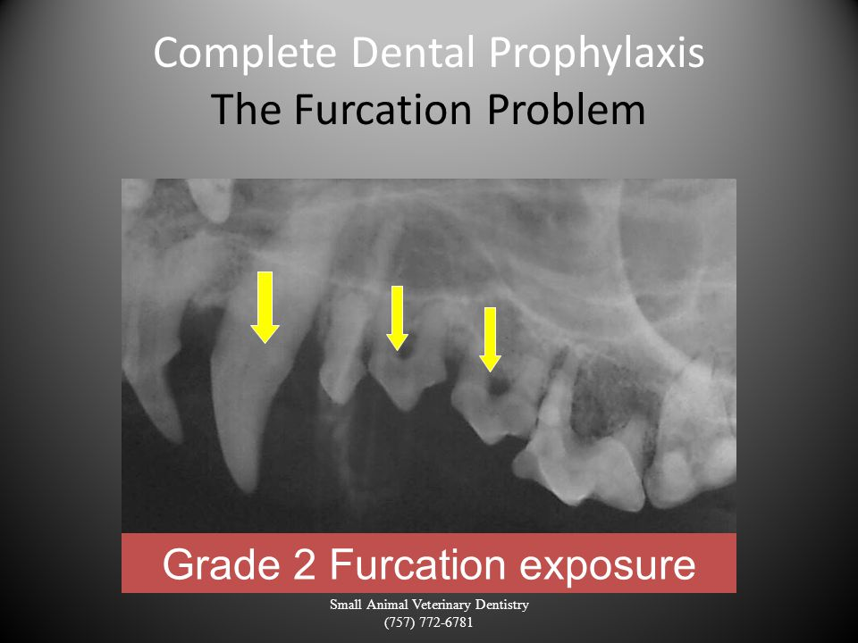 Complete Dental Prophylaxis The Furcation Problem Small Animal Veterinary Dentistry (757) 772-6781 Grade 2 Furcation exposure