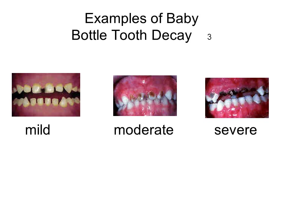 Good tooth care… 14 start early be consistent set a good example brush teeth together brush childs teeth/wipe gums let your child brush your teeth for you!