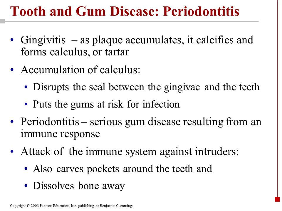 Copyright © 2003 Pearson Education, Inc. publishing as Benjamin Cummings Tooth and Gum Disease: Periodontitis Gingivitis – as plaque accumulates, it c