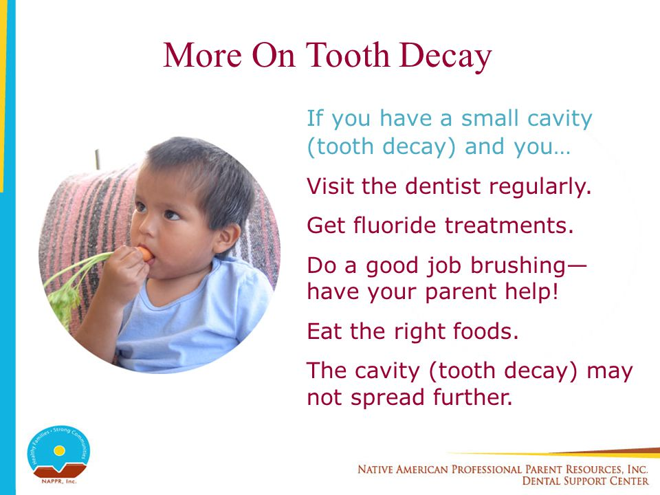 More On Tooth Decay If you have a small cavity (tooth decay) and you… Visit the dentist regularly. Get fluoride treatments. Do a good job brushing hav