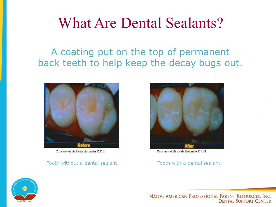 What Are Dental Sealants? A coating put on the top of permanent back teeth to help keep the decay bugs out. Courtesy of Dr. Craig Hollander D.D.S. Too