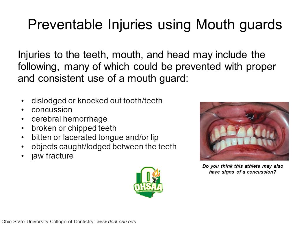 2011-12 NFHS Wrestling Rule Rule 4.2.6 (page 17) Each contestant who has braces or has a special orthodontic device on his or her teeth, shall be required to wear a tooth and mouth protector.