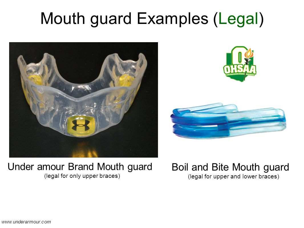 Mouth guard Examples (Legal) Under amour Brand Mouth guard (legal for only upper braces) Boil and Bite Mouth guard (legal for upper and lower braces) www.underarmour.com