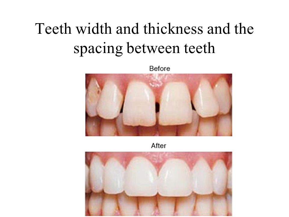 Teeth width and thickness and the spacing between teeth