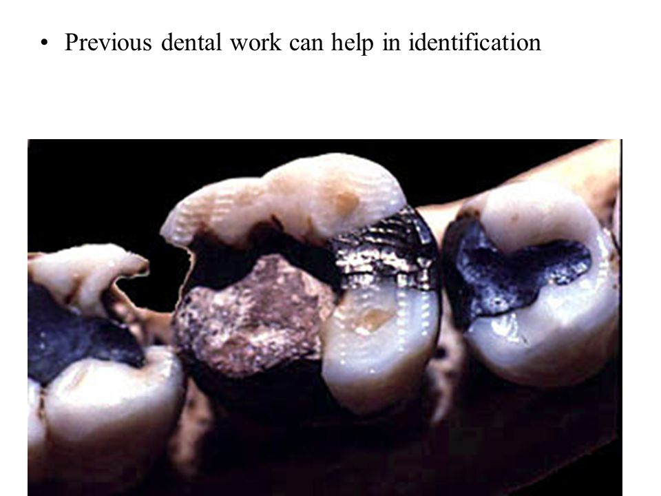 Previous dental work can help in identification