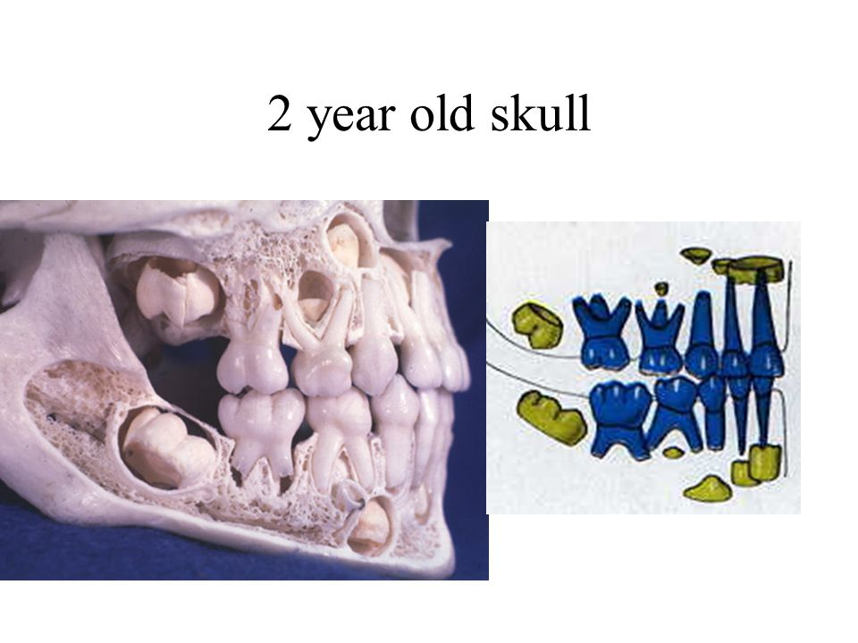 2 year old skull