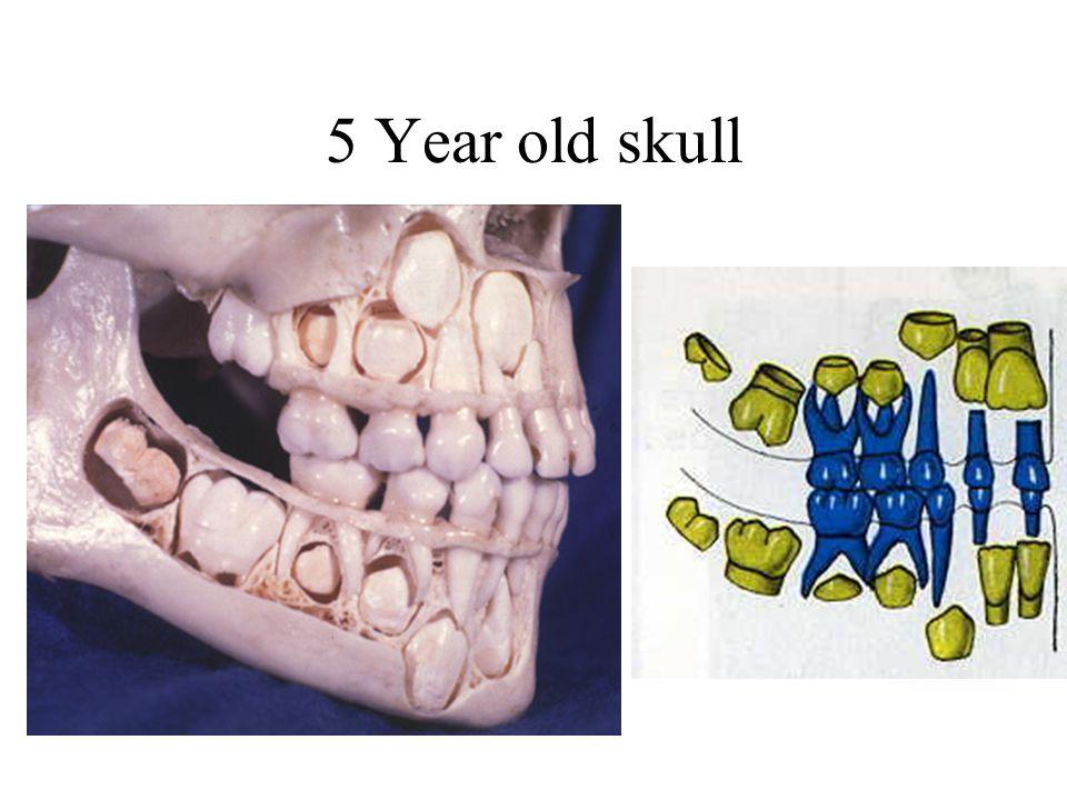 5 Year old skull
