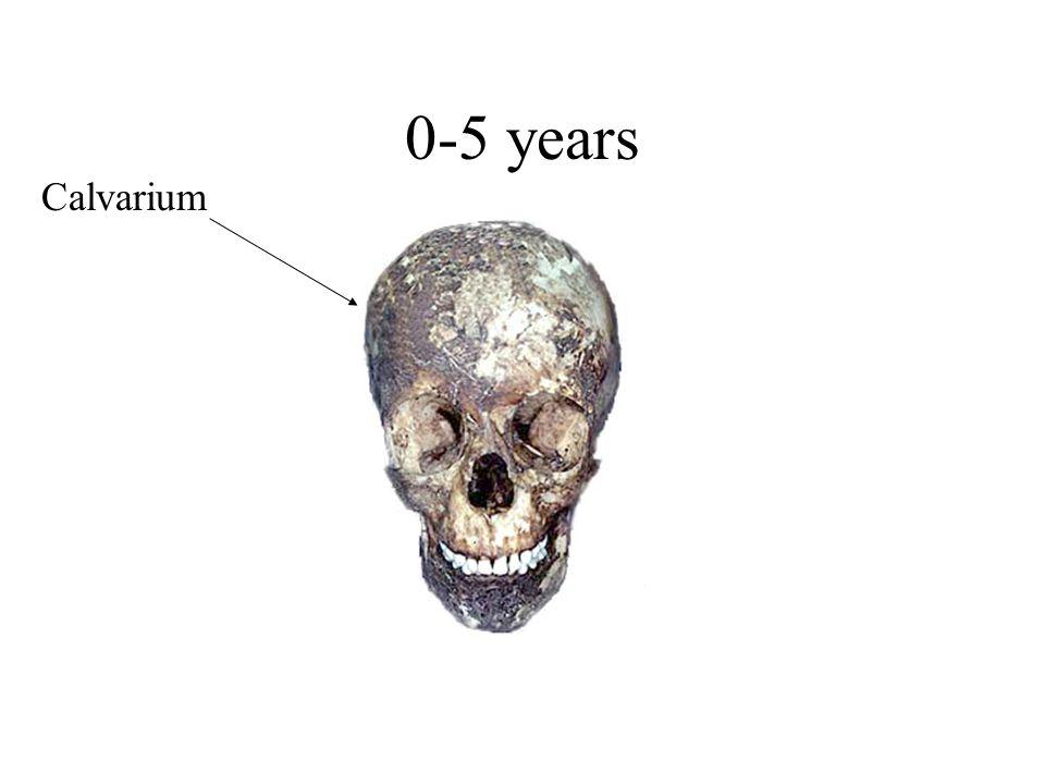 0-5 years Calvarium