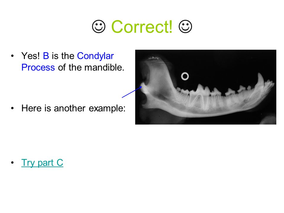 Correct! Yes! B is the Condylar Process of the mandible. Here is another example: Try part C