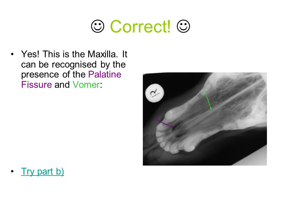 Correct! Yes! This is the Maxilla. It can be recognised by the presence of the Palatine Fissure and Vomer: Try part b)