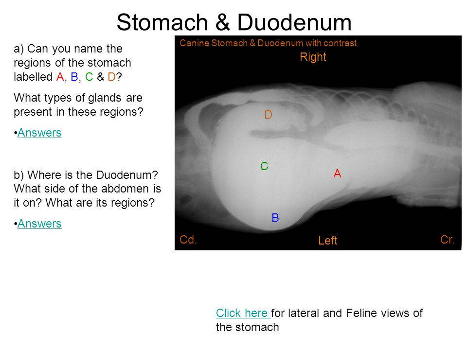 Stomach & Duodenum A B C D a) Can you name the regions of the stomach labelled A, B, C & D? What types of glands are present in these regions? Answers