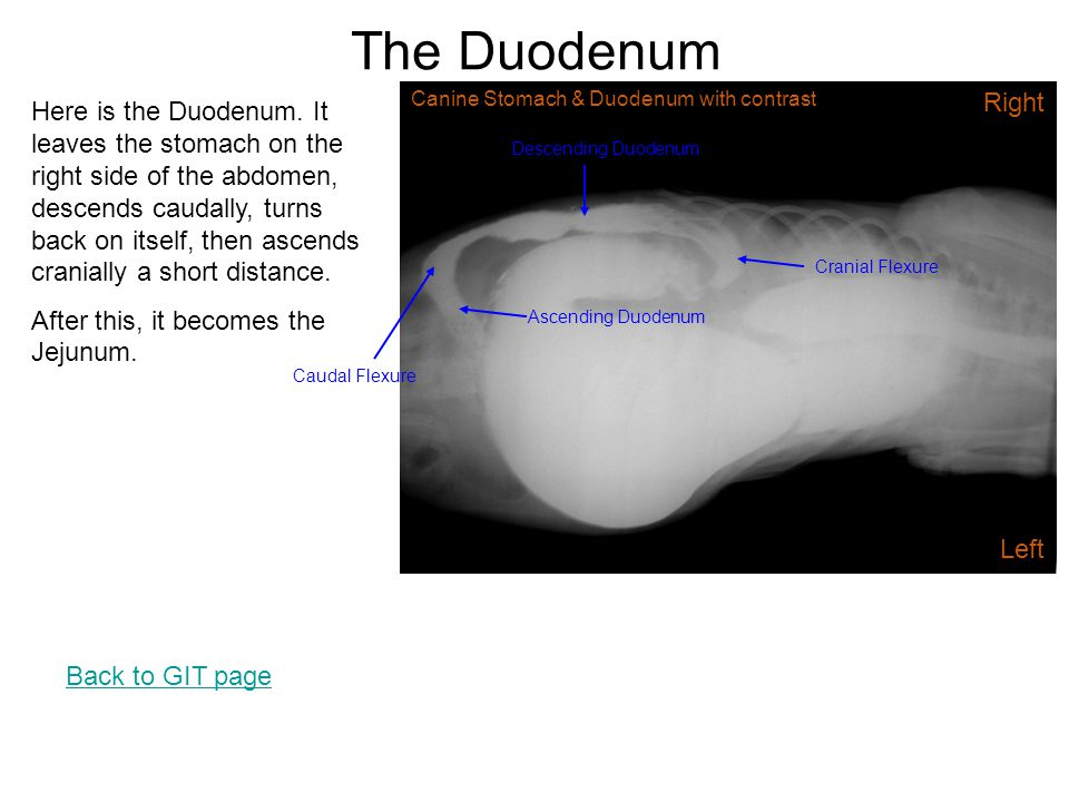 The Duodenum Here is the Duodenum. It leaves the stomach on the right side of the abdomen, descends caudally, turns back on itself, then ascends crani