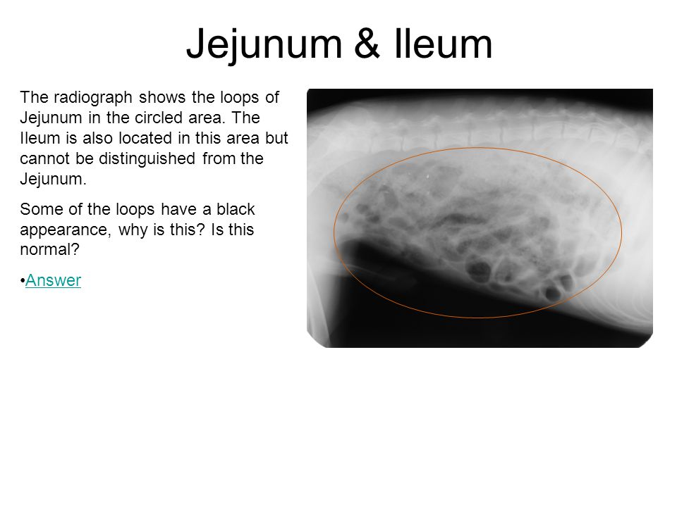Jejunum & Ileum The radiograph shows the loops of Jejunum in the circled area. The Ileum is also located in this area but cannot be distinguished from