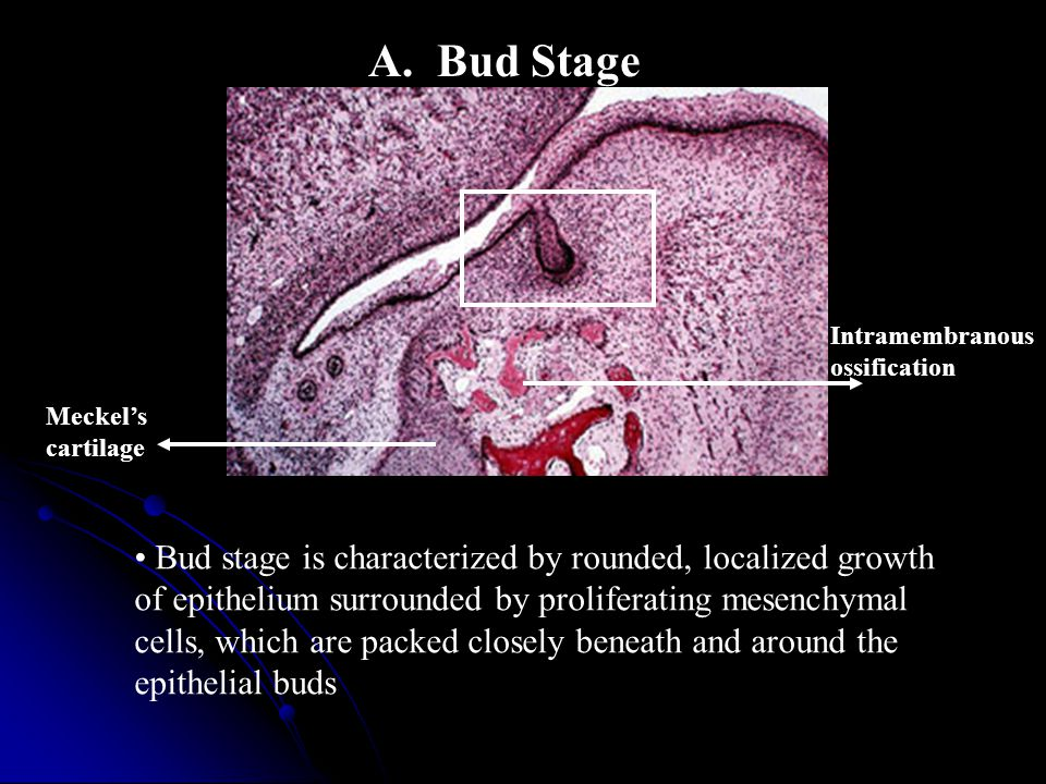 A. Bud Stage Bud stage is characterized by rounded, localized growth of epithelium surrounded by proliferating mesenchymal cells, which are packed clo