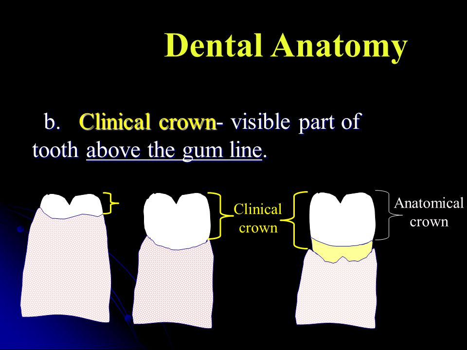 b.Clinical crown- visible part of b.Clinical crown- visible part of tooth above the gum line. Anatomical crown Clinical crown Dental Anatomy
