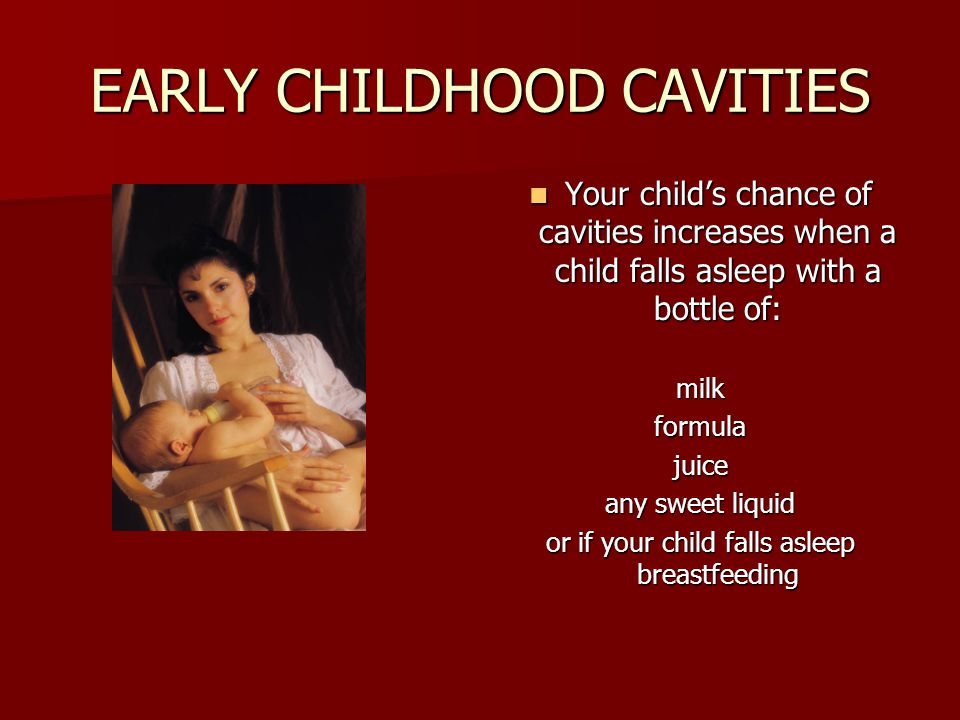 EARLY CHILDHOOD CAVITIES Your childs chance of cavities increases when a child falls asleep with a bottle of: Your childs chance of cavities increases