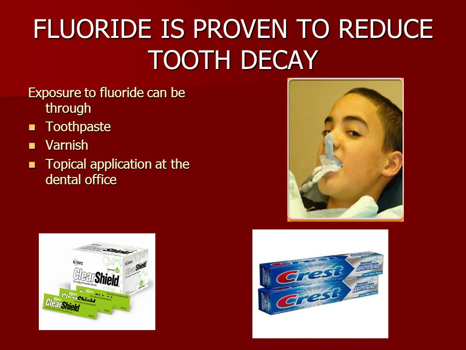 FLUORIDE IS PROVEN TO REDUCE TOOTH DECAY Exposure to fluoride can be through Toothpaste Toothpaste Varnish Varnish Topical application at the dental office Topical application at the dental office