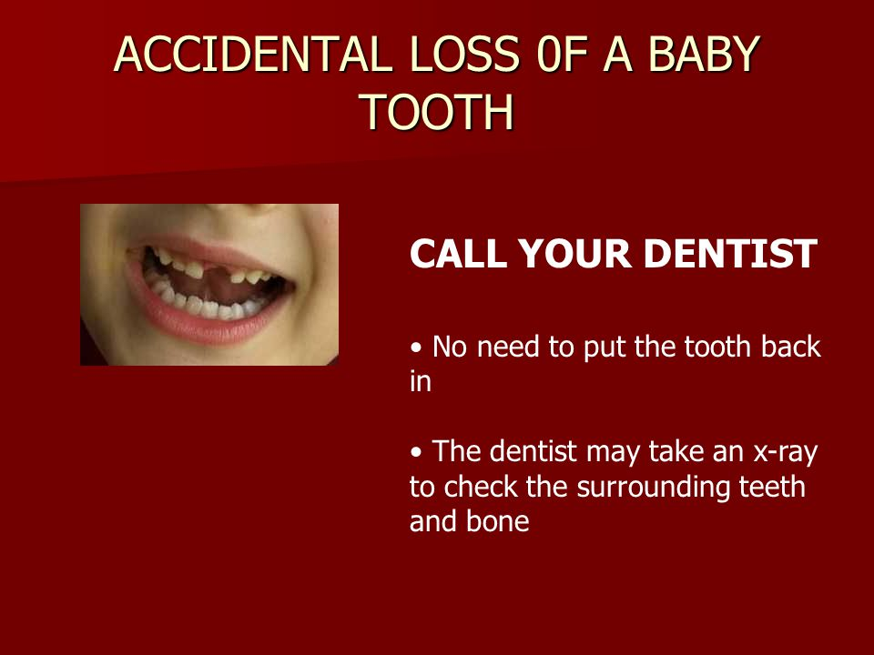 ACCIDENTAL LOSS 0F A BABY TOOTH CALL YOUR DENTIST No need to put the tooth back in The dentist may take an x-ray to check the surrounding teeth and bo