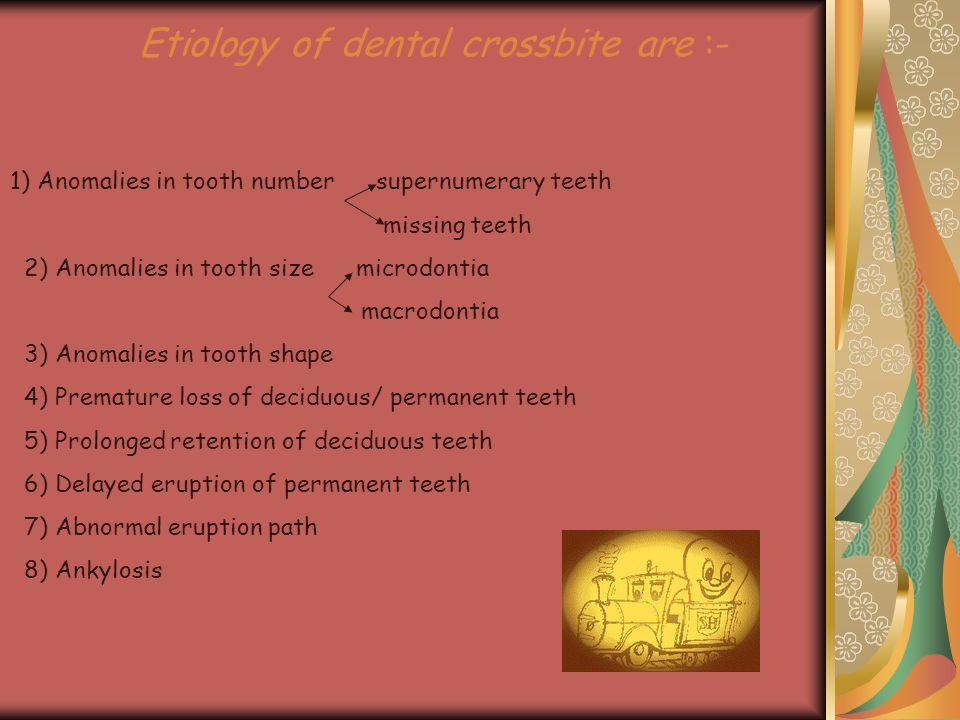 Etiology of dental crossbite are :- 1) Anomalies in tooth number supernumerary teeth missing teeth 2) Anomalies in tooth size microdontia macrodontia