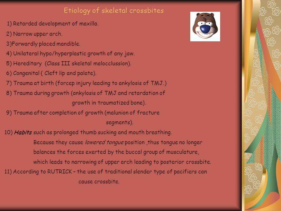 Etiology of skeletal crossbites 1) Retarded development of maxilla. 2) Narrow upper arch. 3)Forwardly placed mandible. 4) Unilateral hypo/hyperplastic