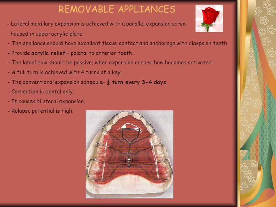 REMOVABLE APPLIANCES - Lateral maxillary expansion is achieved with a parallel expansion screw housed in upper acrylic plate. - The appliance should h