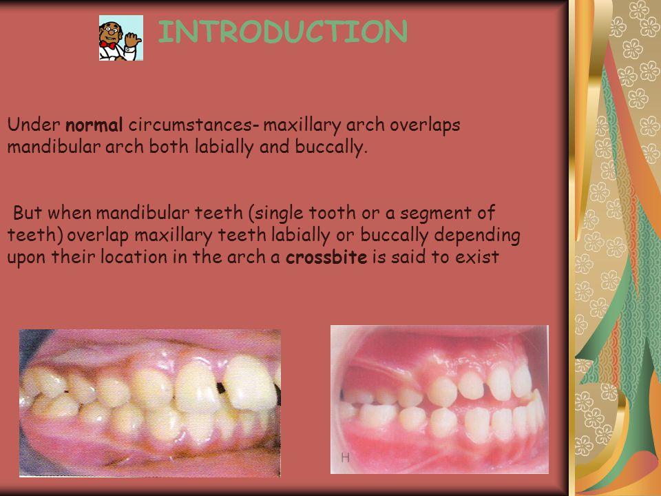 INTRODUCTION Under normal circumstances- maxillary arch overlaps mandibular arch both labially and buccally. But when mandibular teeth (single tooth o