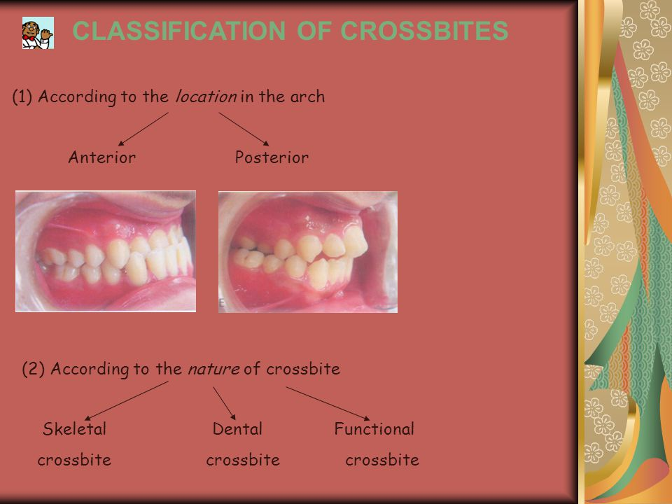 In primary dentition - Posterior crossbite in primary dentition is usually as a result of constriction of the maxillary arch which often results from an active digit or pacifier habit.