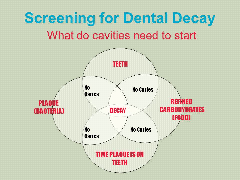Screening for Dental Decay What do cavities need to start TEETH No Caries DECAY TIME PLAQUE IS ON TEETH PLAQUE (BACTERIA) REFINED CARBOHYDRATES (FOOD)