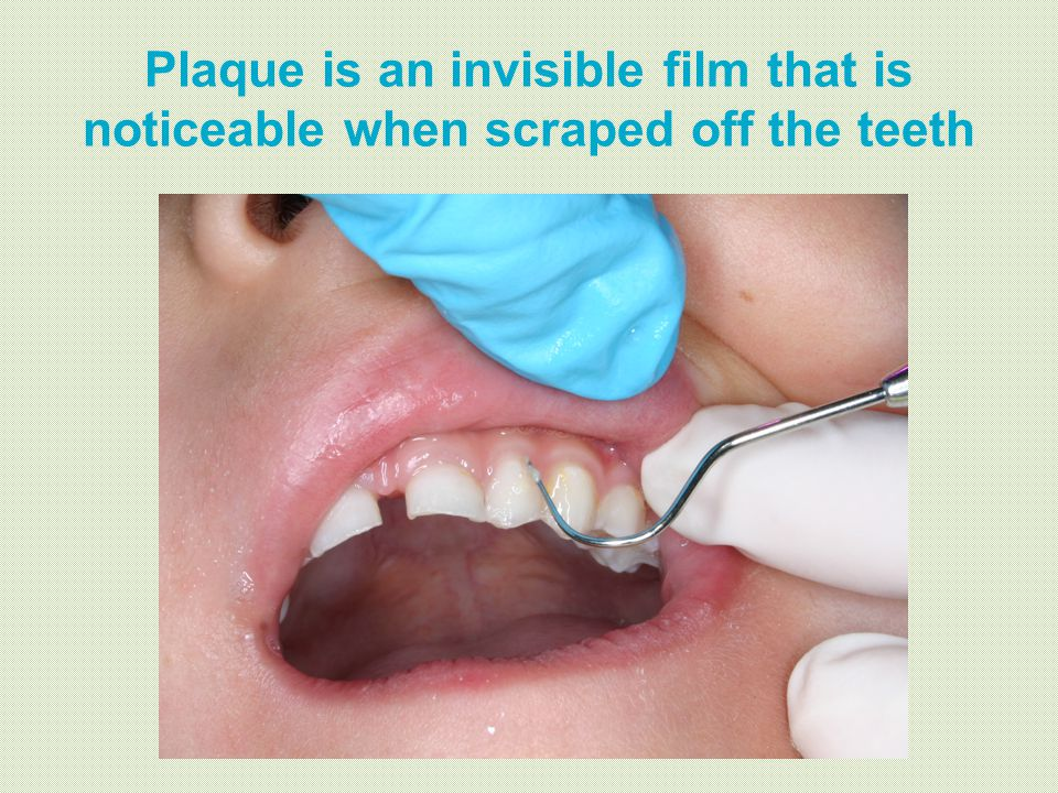 Plaque is an invisible film that is noticeable when scraped off the teeth
