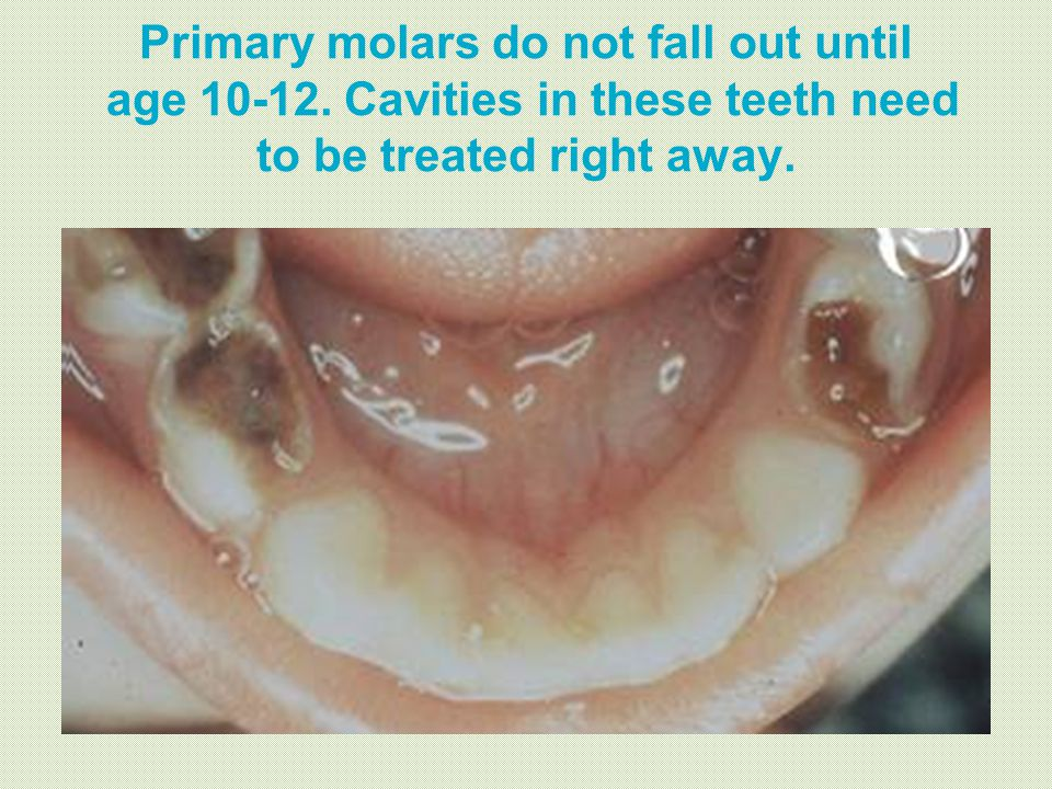 Primary molars do not fall out until age 10-12. Cavities in these teeth need to be treated right away.