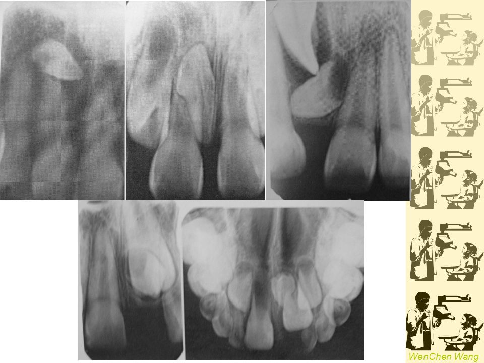 WenChen Wang ERUPTION OF TEETH Transposition Two teeth exchanged positions 3 & 4 ; 3 & 2, 657