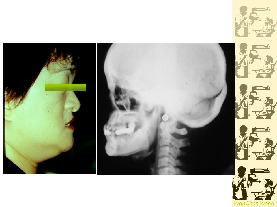 WenChen Wang Turners Hypoplasia (Turners tooth) -a local hypoplastic or hypomineralized defect in crown of a permanent tooth extension of a periapical infection or mechanical trauma from deciduous predecessor most common in lower premolars