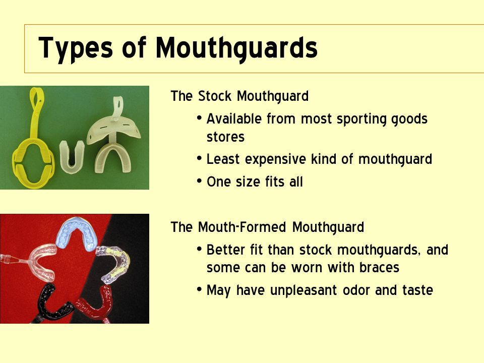 Types of Mouthguards The Stock Mouthguard Available from most sporting goods stores Least expensive kind of mouthguard One size fits all The Mouth-For