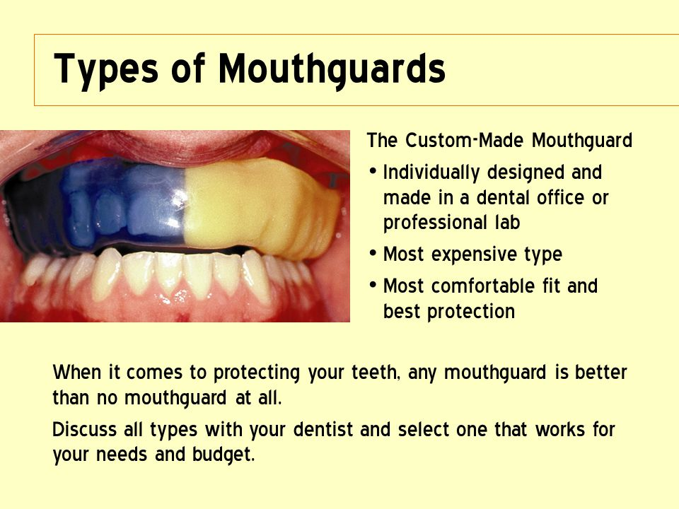Types of Mouthguards The Custom-Made Mouthguard Individually designed and made in a dental office or professional lab Most expensive type Most comfort