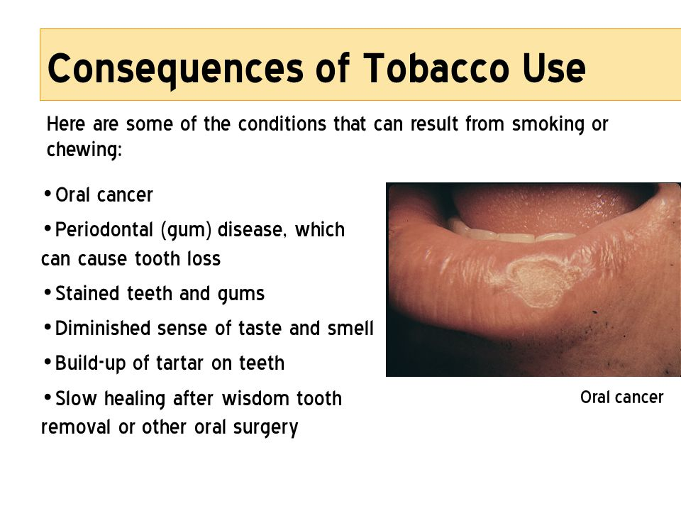 Consequences of Tobacco Use Oral cancer Periodontal (gum) disease, which can cause tooth loss Stained teeth and gums Diminished sense of taste and sme