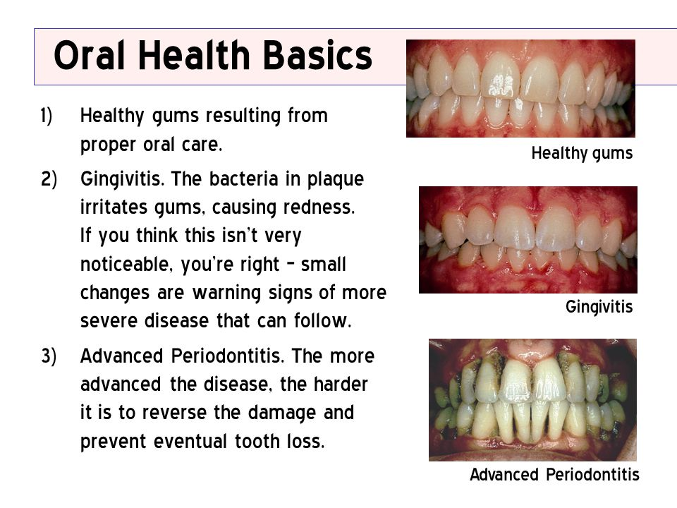 Oral Health Basics 1) Healthy gums resulting from proper oral care. 2) Gingivitis. The bacteria in plaque irritates gums, causing redness. If you thin