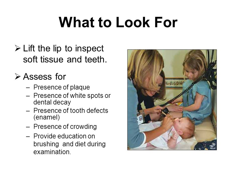 What to Look For Lift the lip to inspect soft tissue and teeth. Assess for –Presence of plaque –Presence of white spots or dental decay –Presence of t