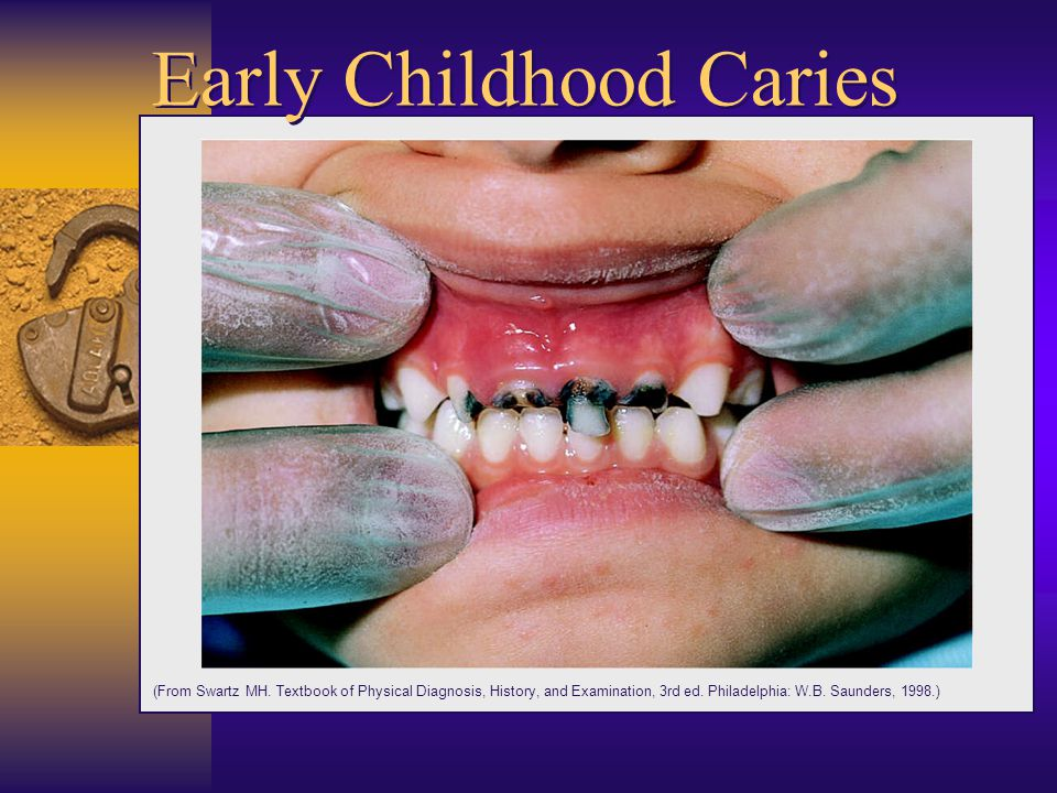 Dental Cariescontd Streptococcus mutansmost common bacteria involved Fermentable Carbohydrate Time Drop in salivary pH to below 5.5