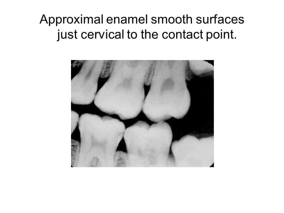 The tooth surface can then be restored using one of the following options: Flowable composite GI and flowable composite Composite amalgam