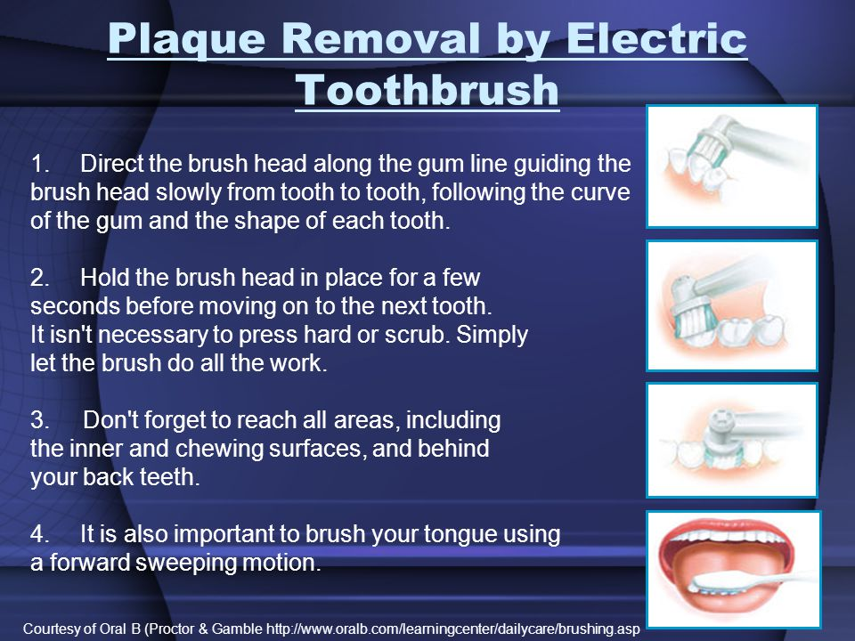 Plaque Removal by Electric Toothbrush 1.Direct the brush head along the gum line guiding the brush head slowly from tooth to tooth, following the curv