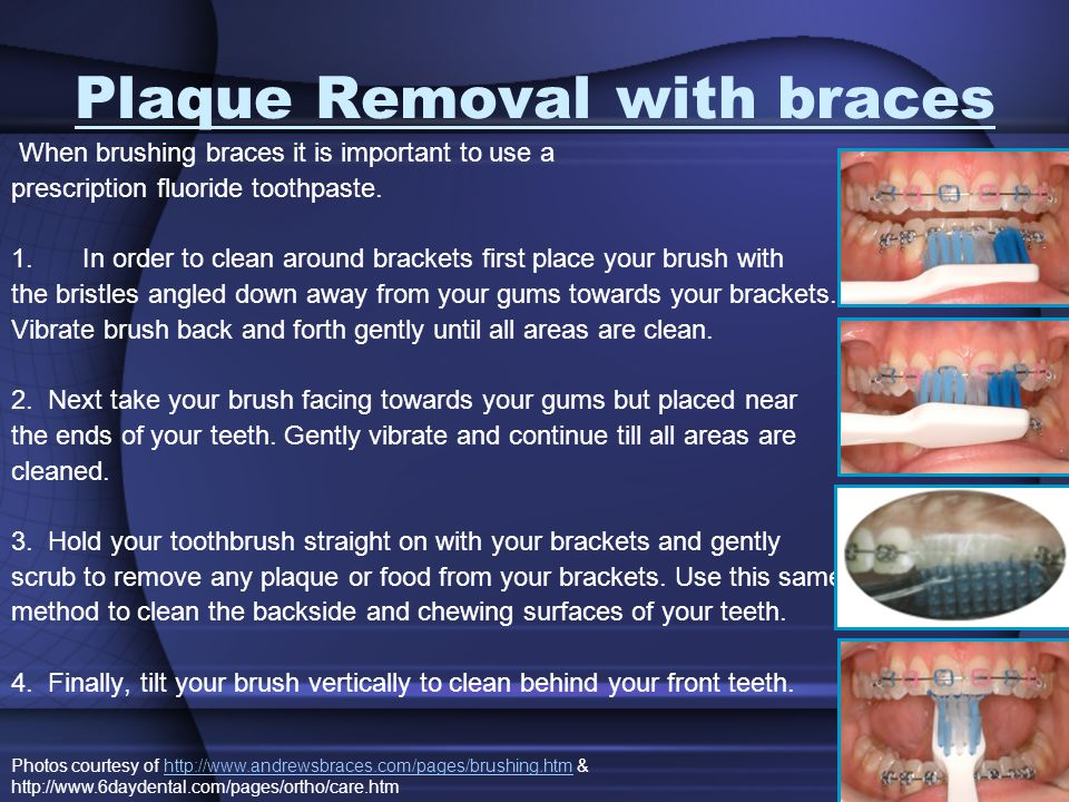 Plaque Removal with braces When brushing braces it is important to use a prescription fluoride toothpaste.